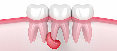 Im durchsichtiges mund bläschen Zungenbläschen