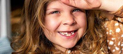 Backe zahn op nach dicke Toter Zahn,