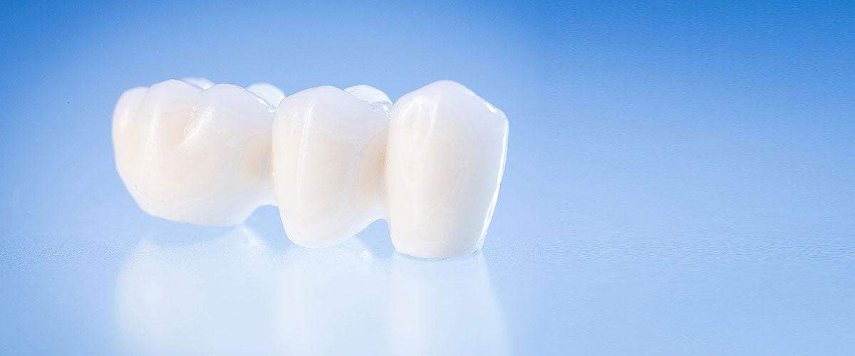 Zahnfarbe häufigste Professionelles Bleaching