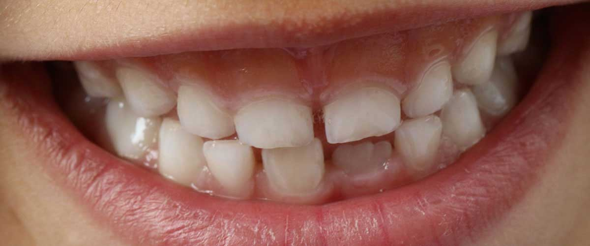 Zahn halb abgebrochen