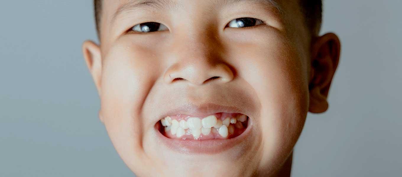 Zähne selber wachsen lassen