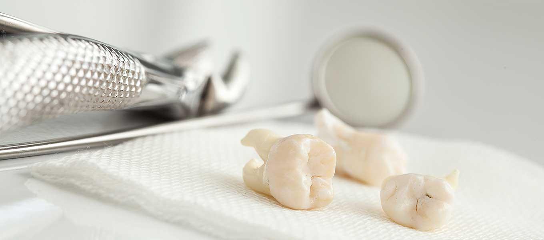 Zahn gezogen wie lange dauert es bis das loch zuwachsen